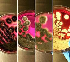 Microbial Testing, STEC, Salmonella, E. coli, staphylococcus, Listeria, Aspergillus, yeast and mold, Enterobacteriaceae