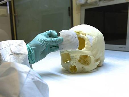 Why Ceramics 3D Printing