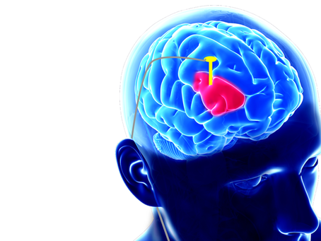 Surgical treatment options for Parkinson's disease- should I consider deep brain stimulation?