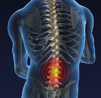 Acute lower back pain- physiotherapy is proven to help prevent re-occurrence.