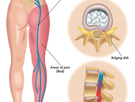 Do you suffer from Sciatica?
