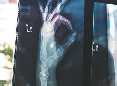 Osteoarthitis or 'wear and tear' - How worried should you be?