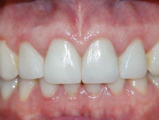 5 razones del por qué las personas eligen carillas de cerámica para mejorar su sonrisa