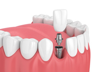 Tipos de IMPLANTES DENTALES ¿Cuál es el mejor implante?