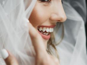 ¿A punto de casarte? Luce una sonrisa perfecta el gran día