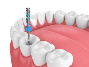 Salvar Una Pieza Dental Con Una Endodoncia