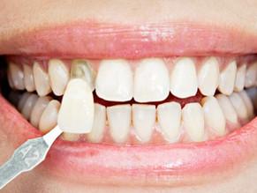 ¿Cómo se limpian y cuidan las carillas dentales? 6 TIPS PRACTICOS