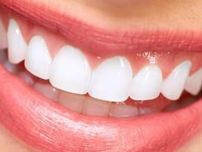 5 Preguntas frecuentes sobre las Carillas Dentales