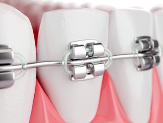 Ortodoncia Rápida: Tipos de Brackets y su duración