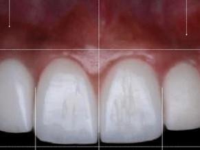 Carillas dentales o blanqueamiento dental, ¿cuál es mejor en diseño de sonrisa?