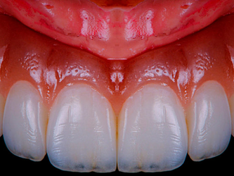 Diferencia entre gingivectomía y gingivoplastia