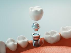 Descubre qué tipos de implantes dentales se adapta mejor a ti