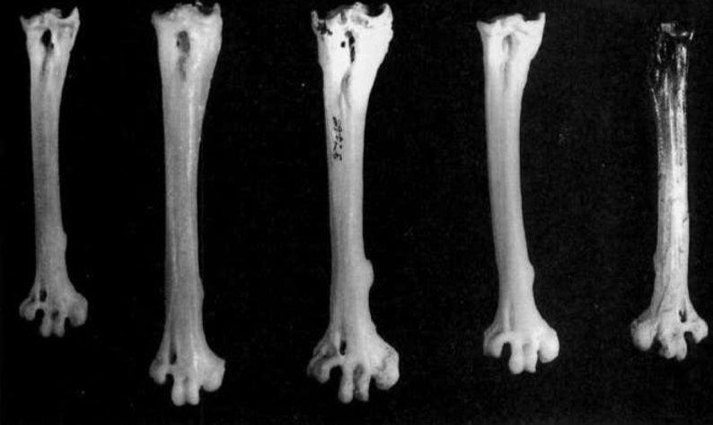 Metatarsal bones from an extinct Fijian