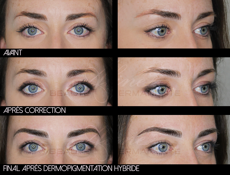 Dermopigmentation Maquillage Permanent Correction Sourcils Hybrides