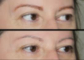 Dermopigmentation Maquillage Permanent Détatouage sans laser Soucils