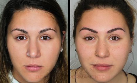 Dermopigmentation Maquillage Permanent Tâches de rousseur