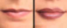 Dermopigmentation Maquillage permanent Bouche Lèvres Contour dégradé