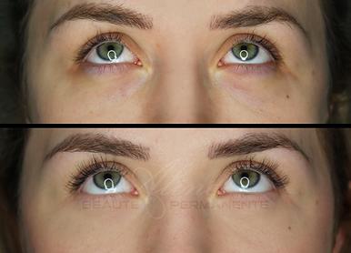 Dermopigmentation Maquillage Permanent Anti-cernes