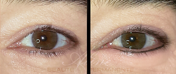 Dermopigmentation Maquillage permanent Eye-Liner inférieur