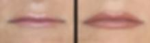 Dermopigmentation Maquillage Permanent Correction Lèvres Bouche