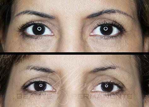 Dermopigmentation Maquillage Permanent Correction
