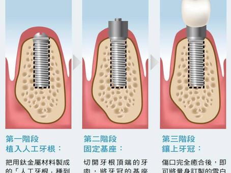 到底什麼是植牙?