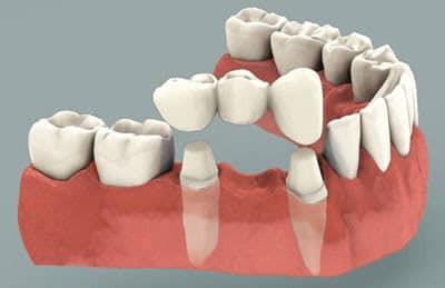 缺牙到底該植牙還是做牙橋呢?