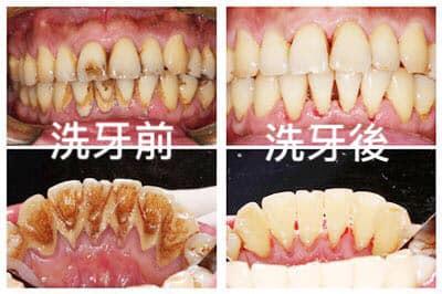 牙結石怎麼產生的呢?