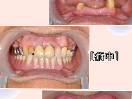 什麼是活動假牙呢?