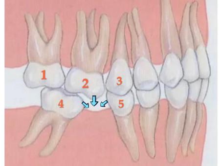 缺牙不處理…會怎樣嗎?