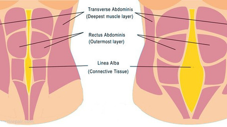 Five for Friday- 5 Things You Should Know About Diastasis Recti
