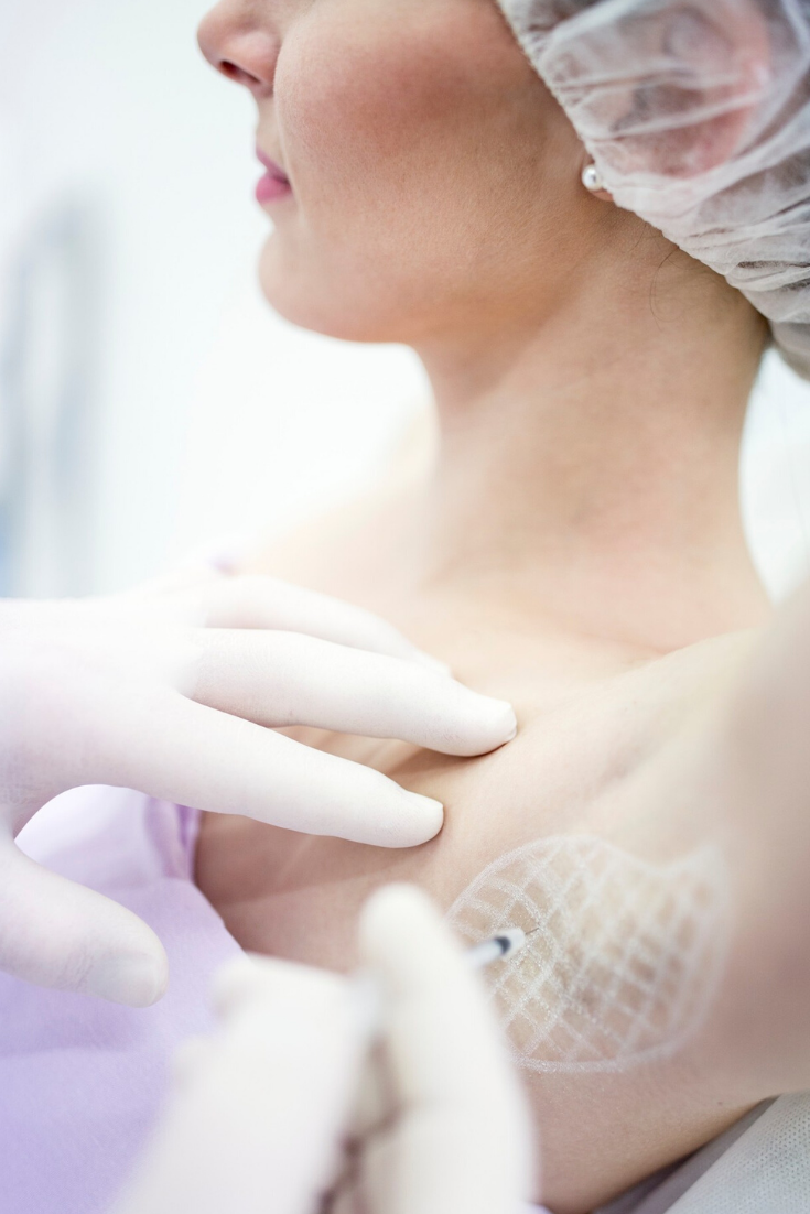 botox for underarms hyperhidrosis