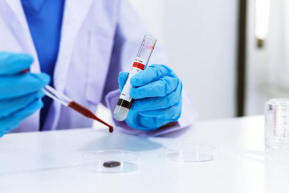 vecteezy_scientist-is-testing-blood-samp