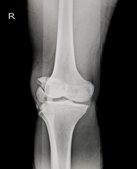 x-ray-knee-ap-lateral-showing-fracture-p
