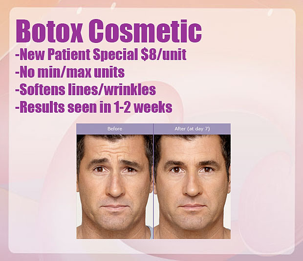 Denver Botox 8 Unit
