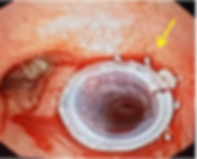 Silicone stent in the Right main bronchu