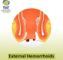 External-Hemorrhoids.jpg