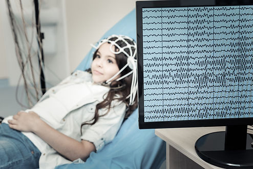 Professional electroencephalogram. Selec