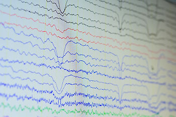 Electroencephalographic waves of patient