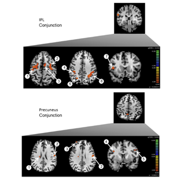 4. Thaler et al. Cotrex, 2014