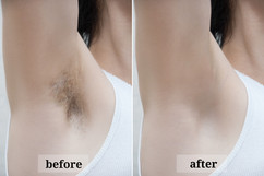 Depilation zone underarms. Before and af