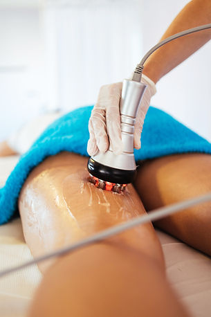 Cavitation RF body treatment and contemp