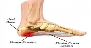 Be A Fanatic About Your Running Gait and Heal Your Plantar Fasciitis