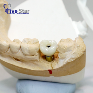 Bruxer Screw Retained Crown