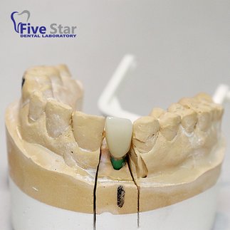 Custom Abutment with Anterior Bruxer Crown