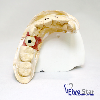 Bruxier Screw Retained Crown