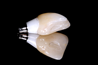screw retained_2.png