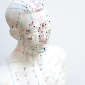 דיקור סיני לבריחת שתן: נפלאות הריפוי של הרפואה הסינית