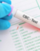 cbc-blood-test-to-test-for-high-mchc.jpg