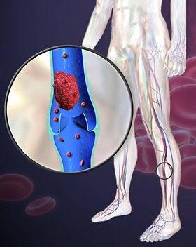 blood-clot-in-leg_edited.jpg